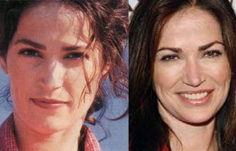 Kim Delaney Plastic Surgery