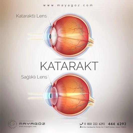 Katarakt ameliyatı sırasında göz içine yerleştirilen multifokal göz içi lensleri kişiye, gözlük kullanmadan her mesafede iyi bir görüş imkanı sunmaktadır. www.mayagoz.com 444 6292 #goz #göz #lens #multifokal #göziçi #katarakt #gozsagligi #gözsağlığı #görüş #görmek #net #akıllılens #teknolojisi #sağlık #sağlıklı YaşaMAYA #ankara #mayagöz