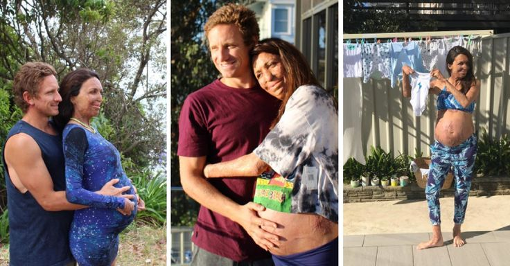 Burns survivor Turia Pitt shows off baby bump in series of new pics