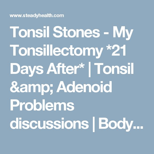 Tonsil Stones - My Tonsillectomy *21 Days After* | Tonsil & Adenoid Problems discussions | Body & Health Conditions center | SteadyHealth.com