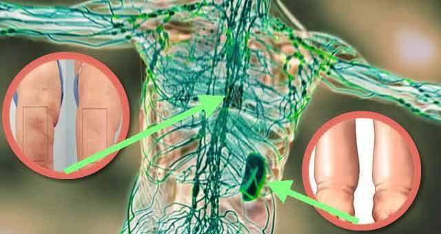 """Un articol de Mihaela Iliescu  Pentru a intari sistemul imunitar, primul pas este curatarea limfei.  Sistemul limfatic este locul in care incep bolile. Daca aceasta mare """"canalizare"""" este blocata, nu isi va indeplini corect functia de evacuare si va """"colmata"""" intregul sistem sanitar al organismului. Rezultatul? Eliminarea necorespunzatoare a deseurilor de metabolism, precum …"""