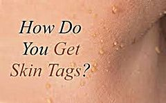 Learn about what causes skin tags to occur.  http://www.skintagsgone.com/what-causes-skin-tags/
