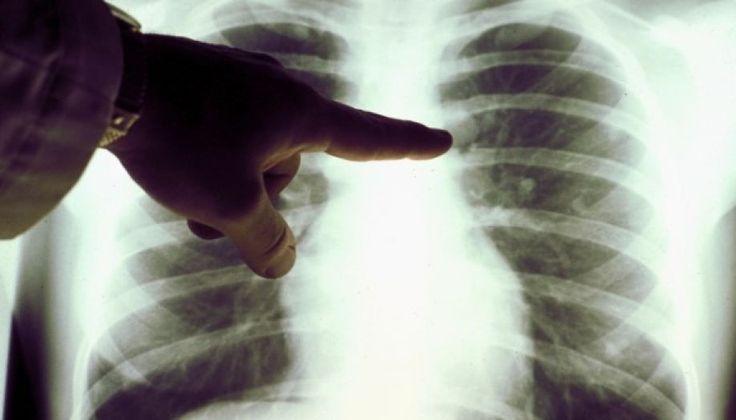 Πρόληψη καρκίνου πνεύμονος