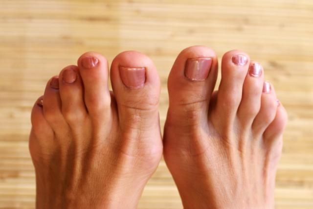 What is a Hammer Toe?: Hammertoe deformity affecting toes of both feet.