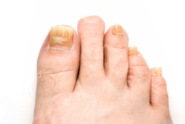how to get rid of white spots under your nails
