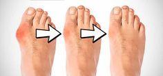 Comment soigner un oignon au pied naturellement ? (Hallux Valgus) Remèdes de…