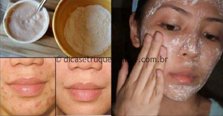 Problemas de pele acne adulta