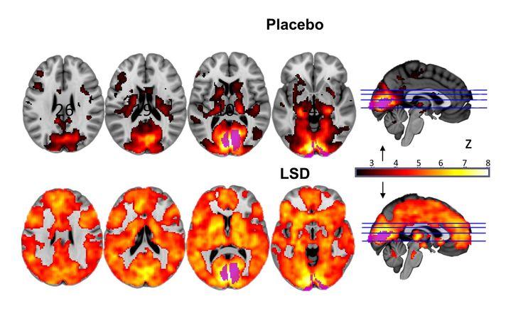 Des scientifiques révèlent en images les effets du LSD sur le cerveau