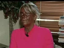 look its an ompa-lumpa...... this is great example of why you should wear sunscreen!