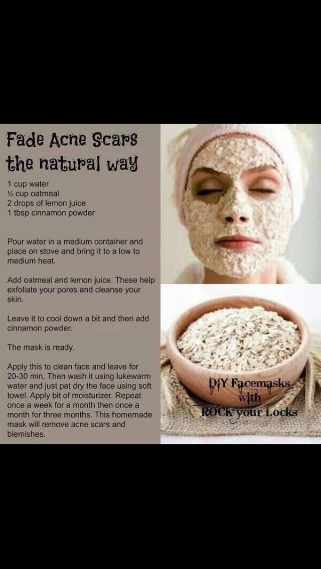 Removing Acne Scars Naturally #Fashion #Beauty #Trusper #Tip