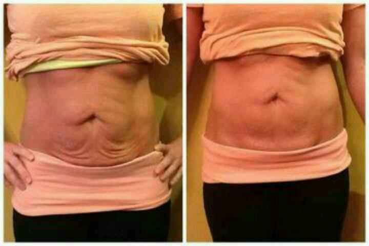 Weight loss after abortion surgery photo 2