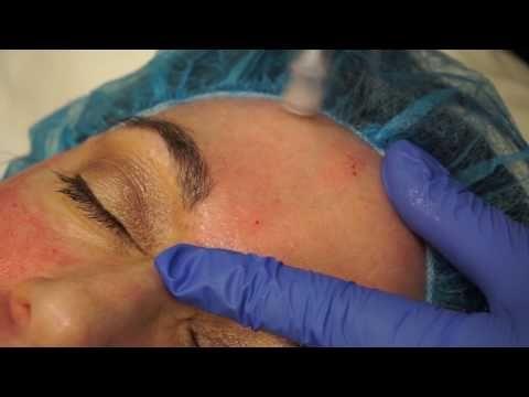 Microneedling at Austin Plastic Surgery Institute & Skin Care Clinic  #skincare #clearkin #microneedling #facial #treatment #smoothskin #cleanskin #austintexas #austin