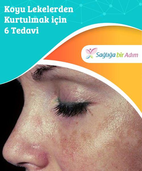 6 Behandlungen, um dunkle Flecken loszuwerden
