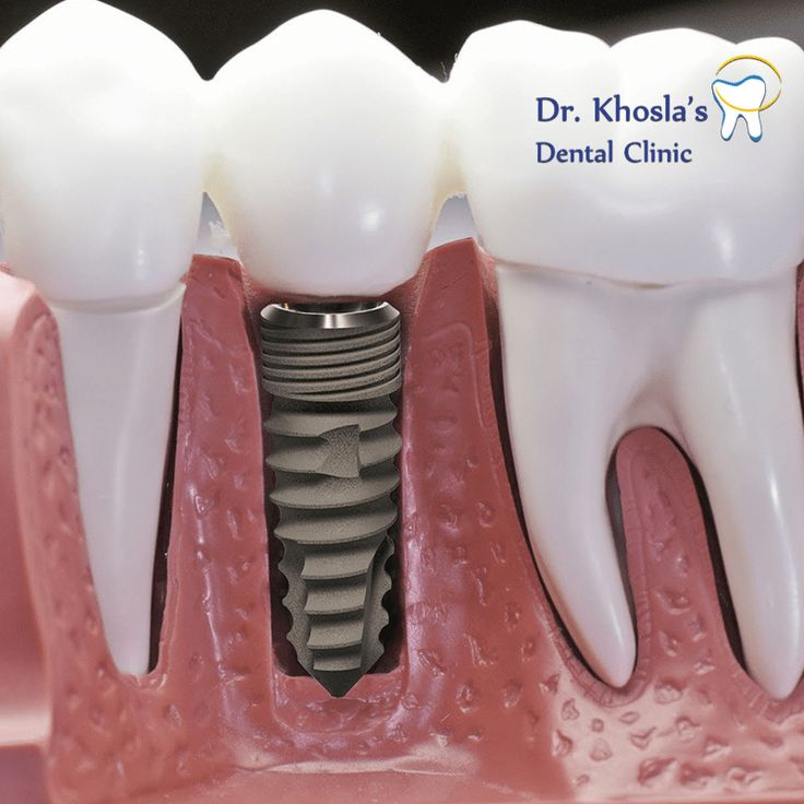 25+ best ideas about Dental Implant Cost on Pinterest ...