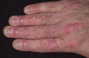 Nail disorders are very common in psoriasis - incl. 12+ fingernail variations.