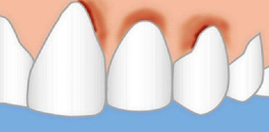 Стоматологи вам этого не скажут: вы не потеряете ни одного зуба — эти средства сделают десна здоровыми и зубы крепкими!