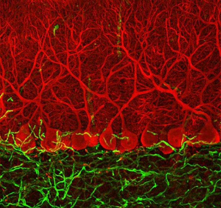 Картинка дня: нейроны Пуркинье