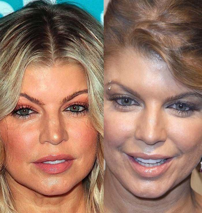 Fergie Plastic Surgery Pictures