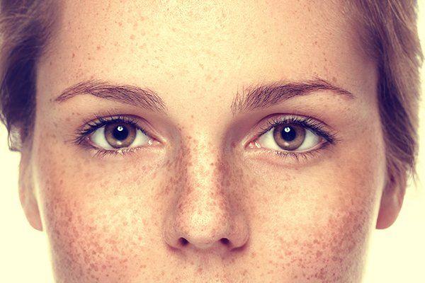 Ena Mystiko Me Kremmydi Kai 3idi Gia Na Antimetwpisete Tis Khlides Sta Xeria H To Proswpo Mystika Omorfias Mystikaomorfias Gr Getting Rid Of Freckles Freckles Face
