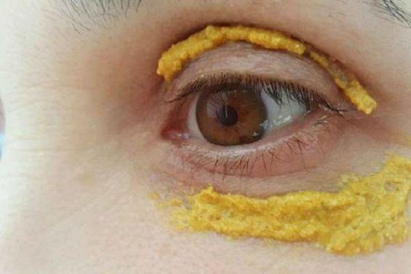 Elle a appliqué le curcuma sur le contour des yeux. 10 minutes après, le résultat est incroyable !