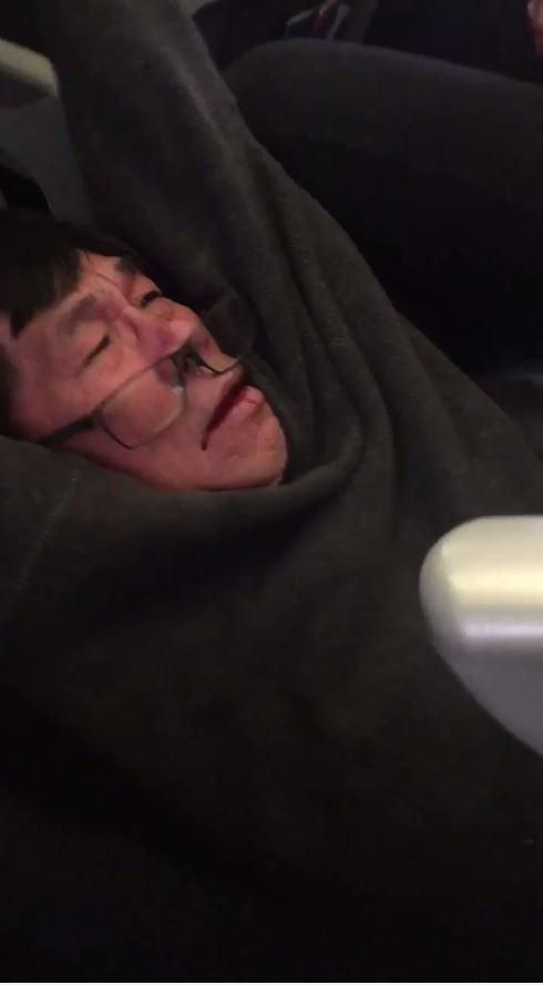 The face of the man who refused to give up his seat to an airline employee on an overbooked United flight as he is dragged off the plane after being assaulted by police
