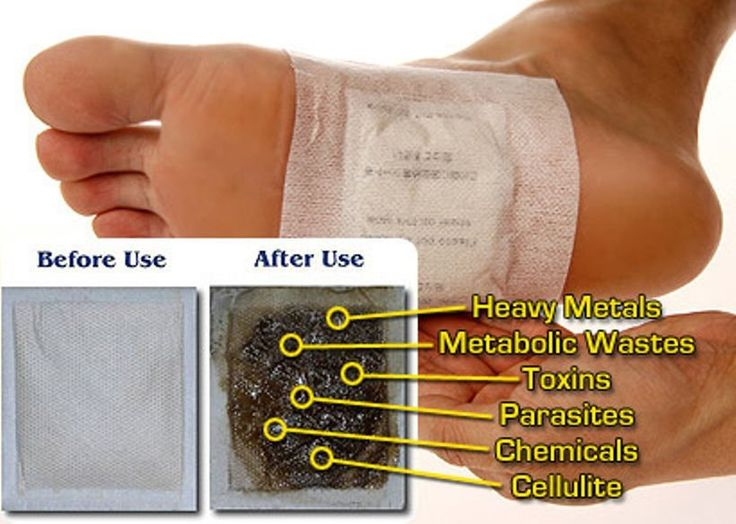 Make Homemade Detox Foot Pads Remove Toxins