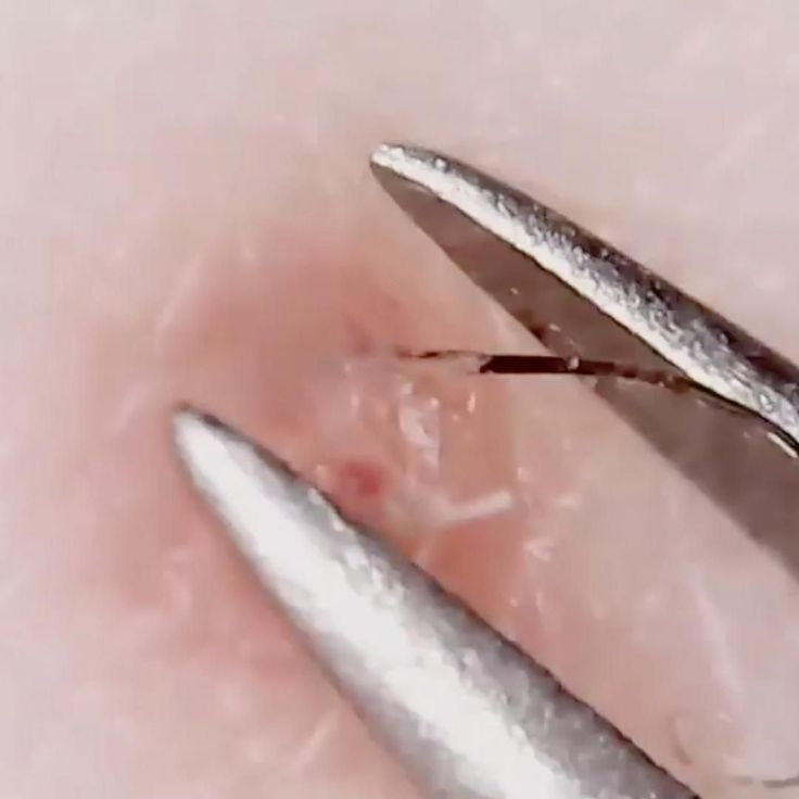 , Ingrown Hairs , Ingrown Hairs...
