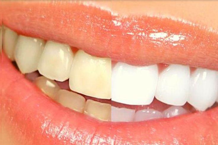 Vous pouvez blanchir vos dents avec une simple banane, voici comment!