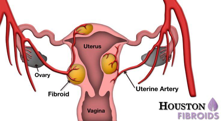 Anterior Vaginal Wall Epitheloid Leiomyoma