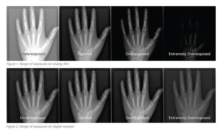Understanding radiology exposure indicators