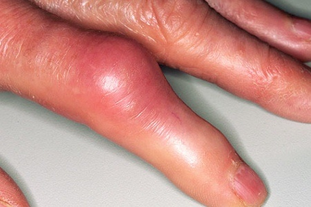 5 Major Symptoms Of Arthritis In Fingers
