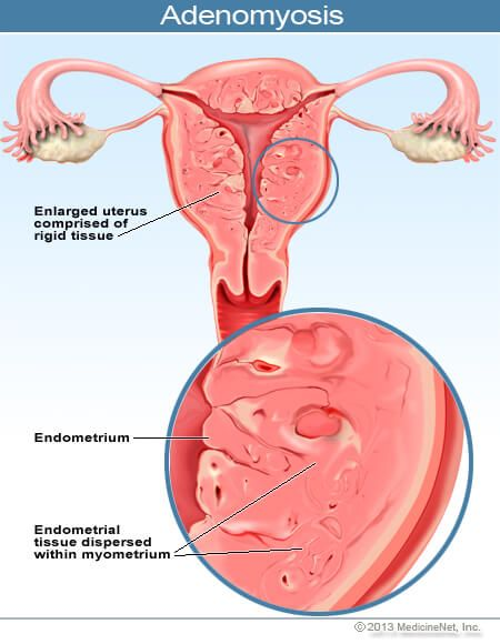 Adenomyosis Endometrial Tissue Dispersed Within The