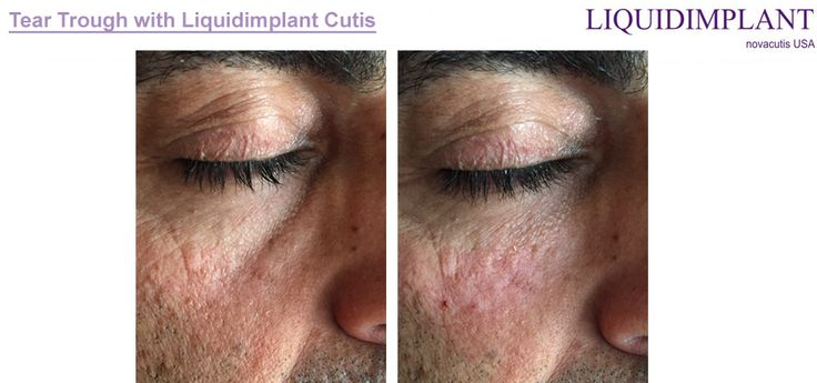 Rellenos faciales Liquidimplant linea de producto confiable con resultados duraderos.  Este es el antes y despues del tratamiento para ocultar las ojeras.
