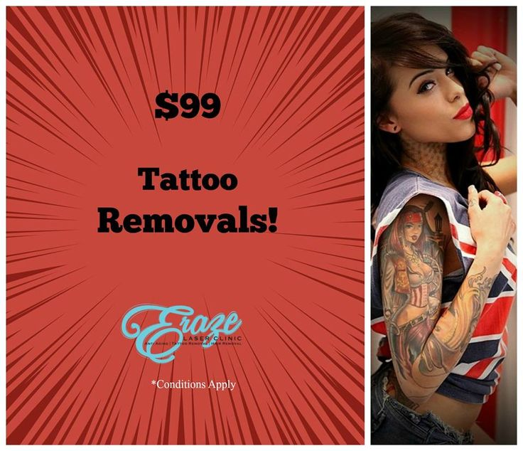 ALL TATTOO REMOVALS for $99!!! To CELEBRATE the opening of our brand new Robina location! Call Us (07) 5636 1529