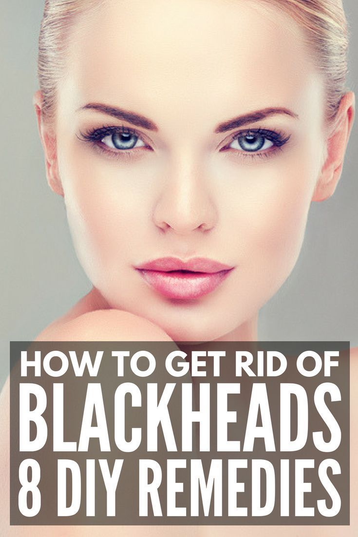 The Best Way to Remove Blackheads  At Home Blackhead Removal Ideas