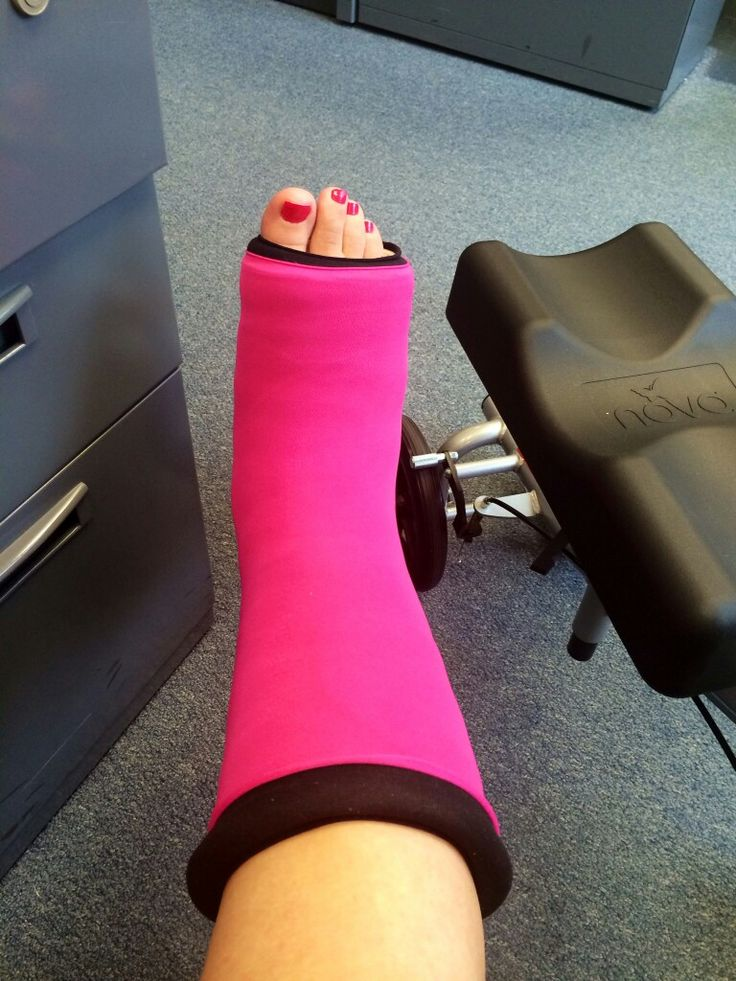 17 Best Casts Images On Pinterest Broken Foot Broken