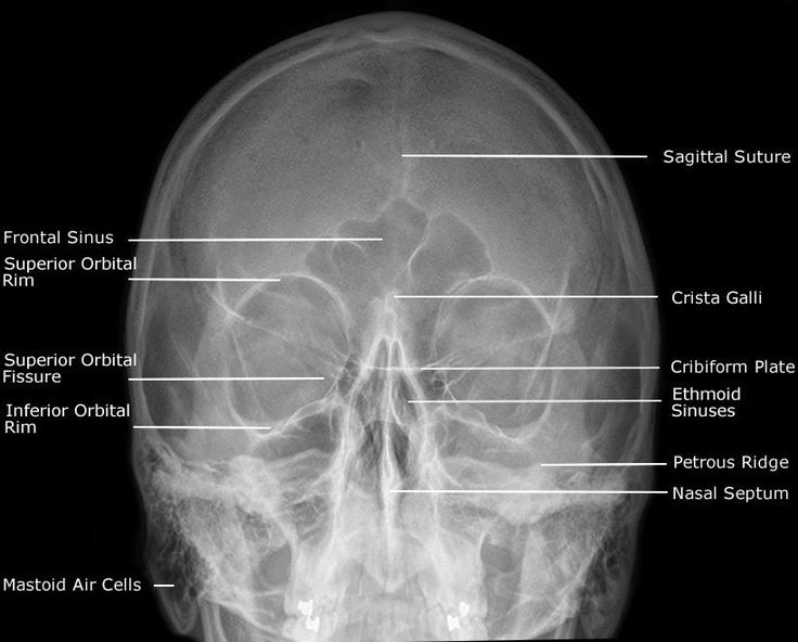 sagittal suture anatomy - 736×592