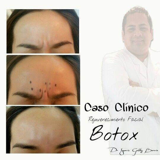 """La toxina Botulinica (botox) es una neurotoxina que produce una relajación muscular importante  Centro Salud Estética Facial & Clinica Dental  Dr.Ignacio Galdós Barcia  Miembro de la Academia Chilena de Estetica orofacial   Whatsapp : + 56 9 84091574. Urgencias : 77495131  Bulnes787, Iquique-Chile   """"La sonrisa es la magia que ilumina el rostro"""""""