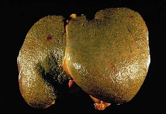 On sait tous qu'il joue un rôle important dans notre organisme mais à quoi sert réellement le foie? D'abord, c'est le plus gros organe solide du corps humain. Situé dans l'abdomen, il joue un rôle de filtre. En recevant 1,5 litres de sang par minute, il élimine entre autres les toxines pour purifier le flux …