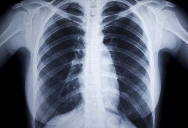 What Is Rheumatoid Lung Disease?