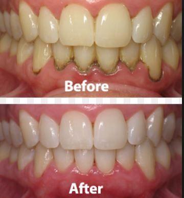 before and after apple cider vinegar teeth whitening health meds community pinterest. Black Bedroom Furniture Sets. Home Design Ideas