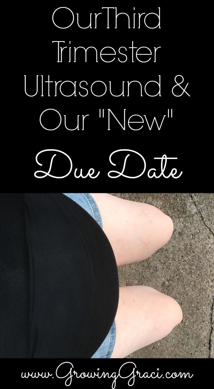 """Our Third Trimester Ultrasound & Our """"New"""" Due Date"""