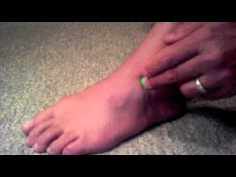 Ankle Sprain Acupressure Points for Healing Ankle Pain, Ankle Stiffness, Sciatica, Top of Foot Pain, and Swollen Ankles*