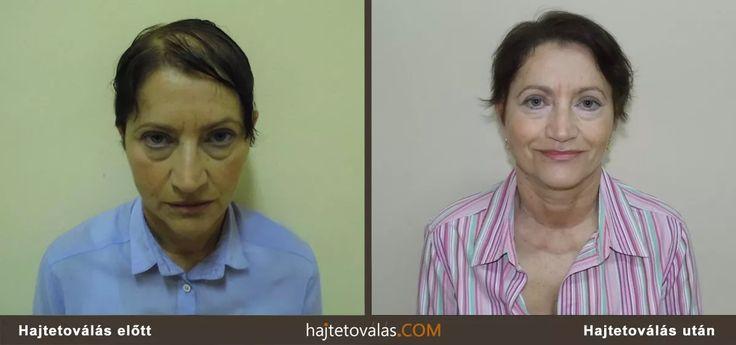 hajtetoválás nőknek  http://hajtetovalas.com/