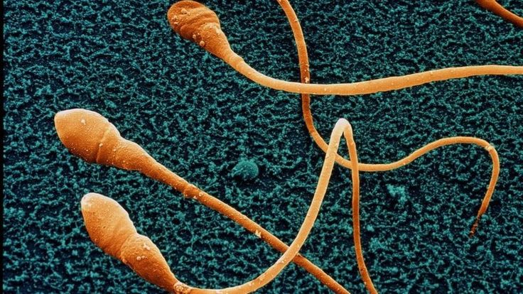 Sperm counts in men from North America, Europe and Australia halve in less than 40 years, research warns.