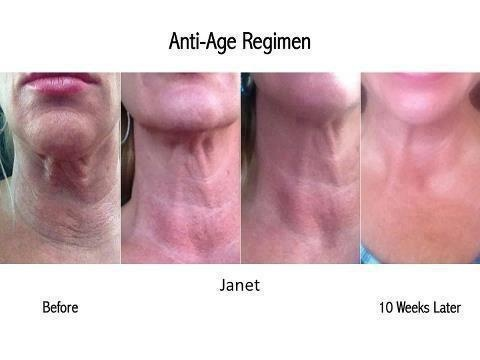 i want you to experience these same results! for a consultation visit my website at kperson.myrandf.com