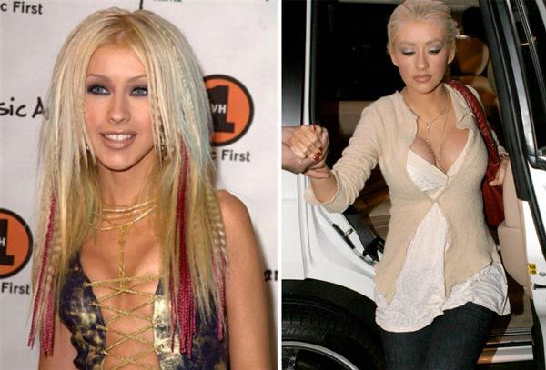 Top 10 Celebrity Breast Implants Before and After Pictures ...