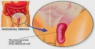 http://dedeherbals.blogspot.com/2014/09/obat-herbal-penyakit-hernia-pada-bayi-dan-anak-tanpa-operasi.html Obat Herbal Penyakit Hernia pada Bayi dan Anak Tanpa Operasi, aman dan Tanpa Efek samping