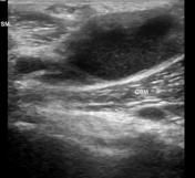 Baker cyst | Radiology Reference Article | Radiopaedia.org