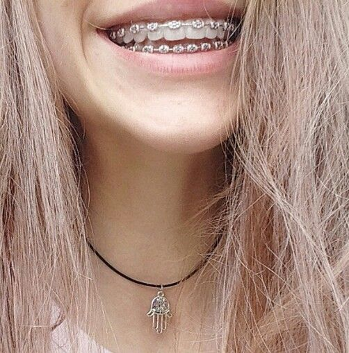I badly want this colour for my braces